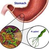 Дыхательный тест на Helicobacter pylori ХЕЛИКОБАКТЕРНАЯ Инфекция